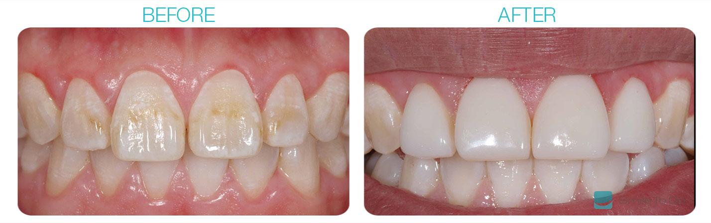 Discoloured Teeth