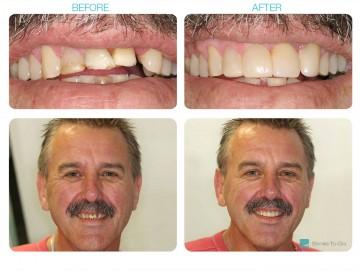 Short Teeth treatment in blackburn