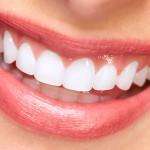 smiling lips with porcelain veneers