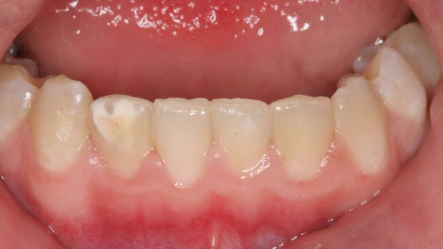 Inman aligner After 18 weeks