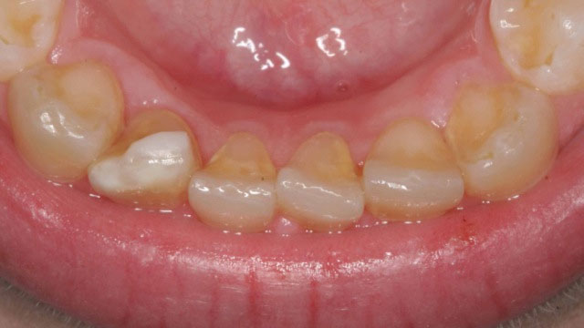 Inman aligner After 8 weeks 2