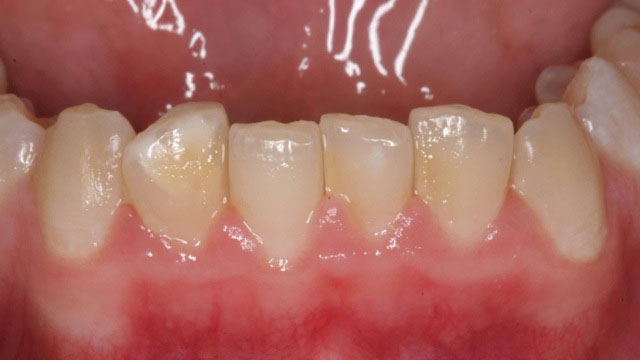 Inman aligner After 8 weeks