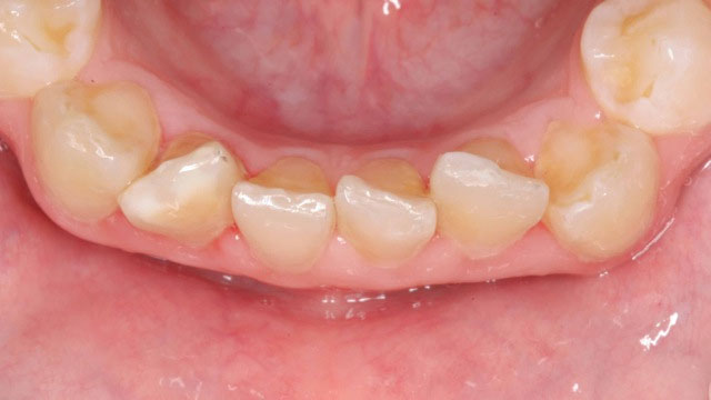 Inman aligner before above