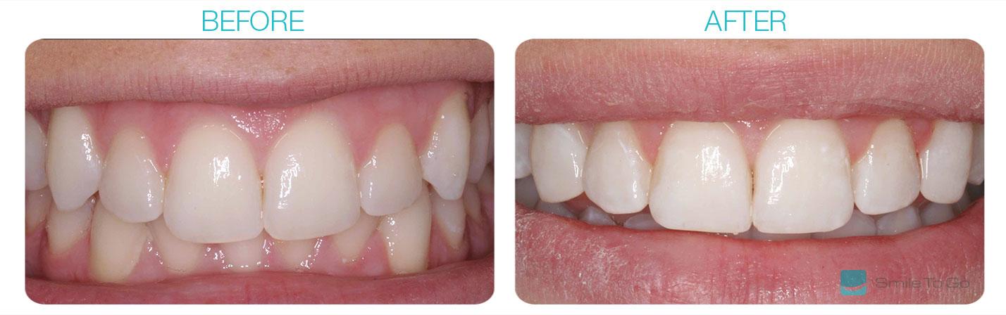 Mis-shaped Teeth