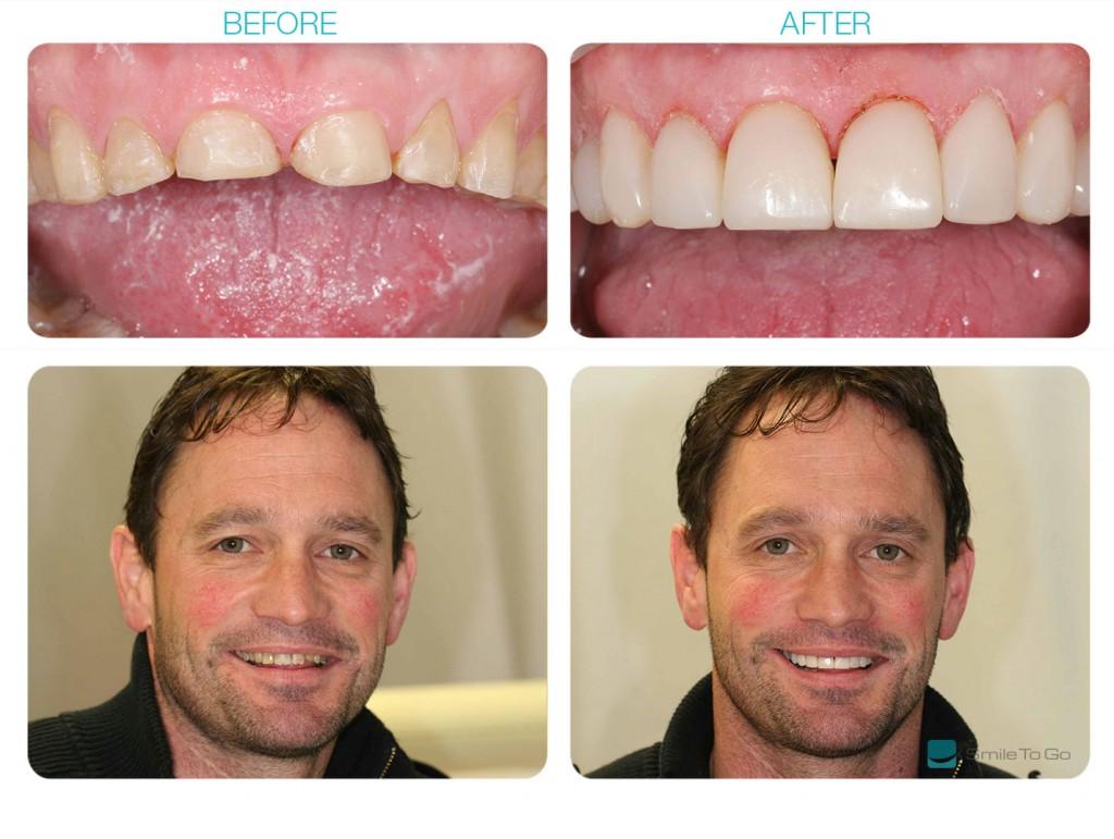 Dentist Blackburn
