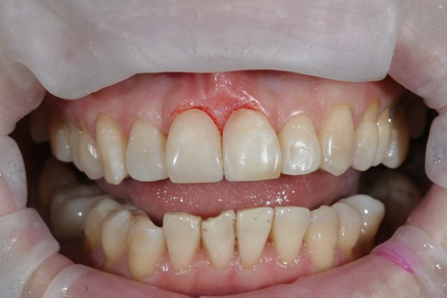 Female 55 yrs - 30 weeks treatment time After Fastbraces Treatment