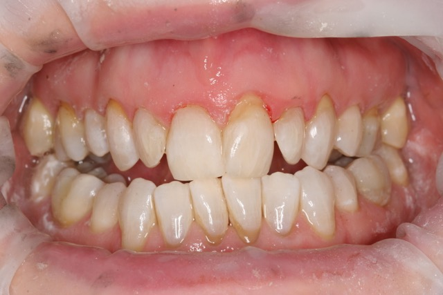 Female 56 yrs - 42 weeks - pt could never bite on her back teeth