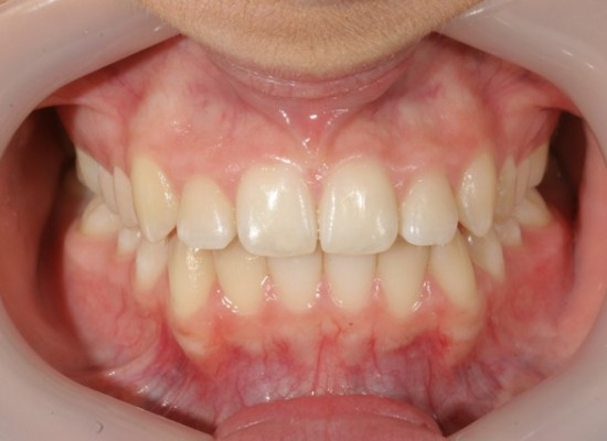 Female Age 14 - Total 27 weeks treatment AfterTreatment