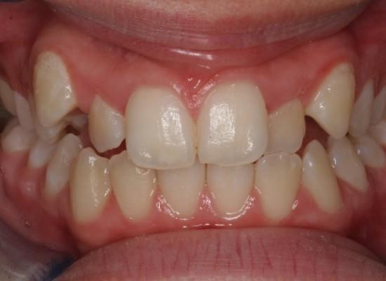 Female Age 14 - Total 27 weeks treatment Before Treatment 2