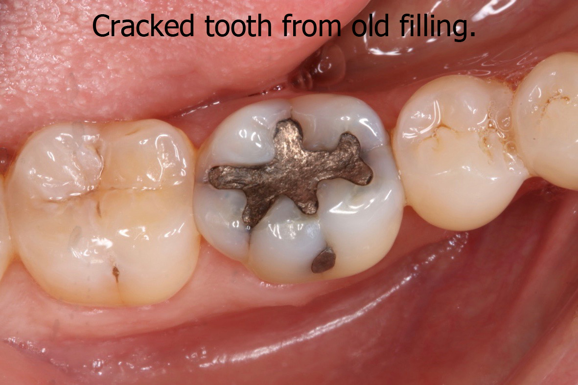 Cracked tooth from old filling latest