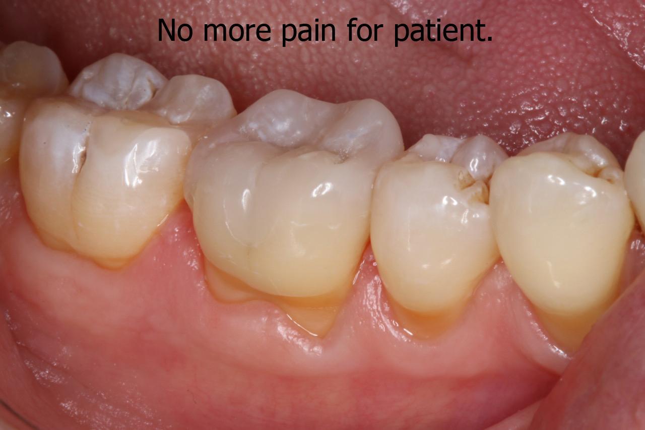 No more pain for patient latest