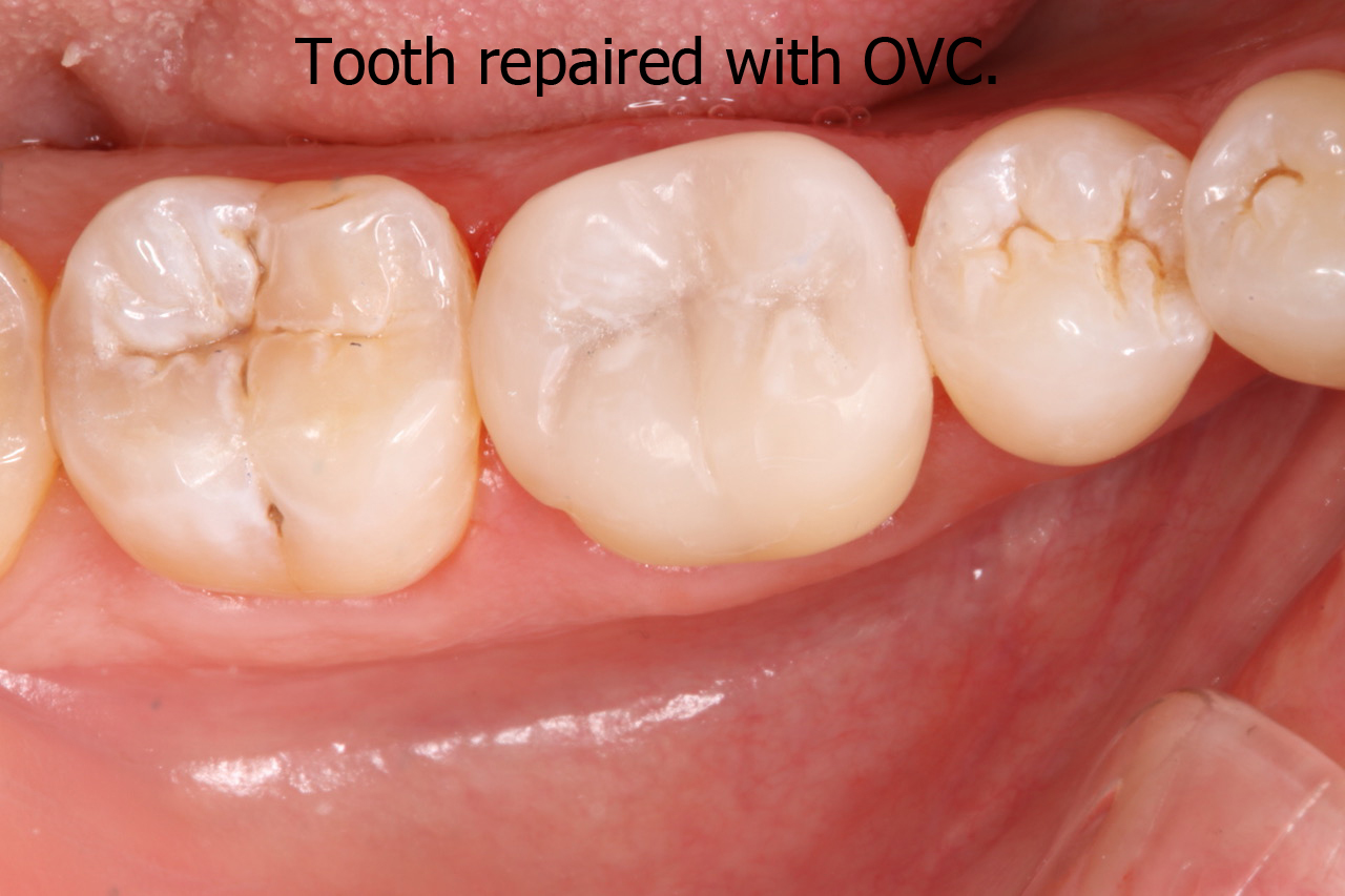 Tooth repaired with OVC latest