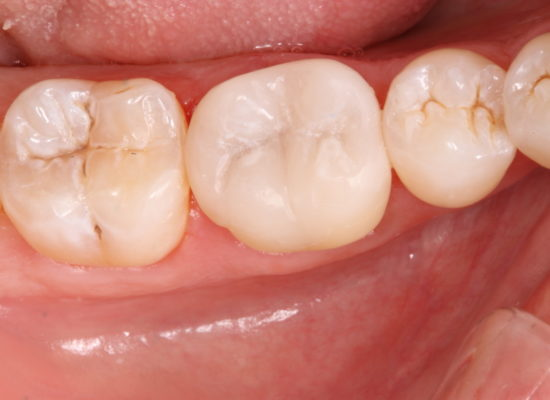 Tooth repaired with a One Visit Crown