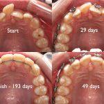 dentures Canterbury