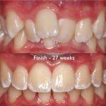Canterbury dentures