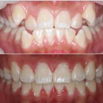 Surrey Hills dentures