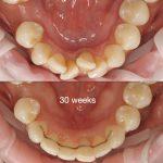 dentures Nunawading