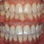 Nunawading dentures