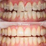 dentures Burwood